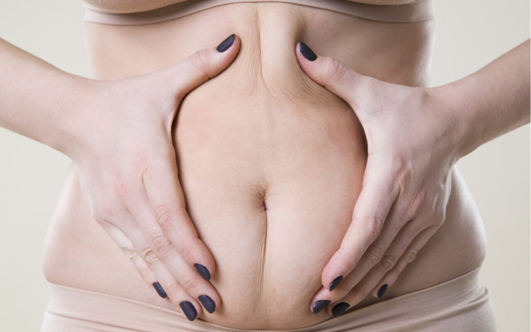 Curious About The Abdominoplasty Surgery (Tummy Tuck Procedure)?