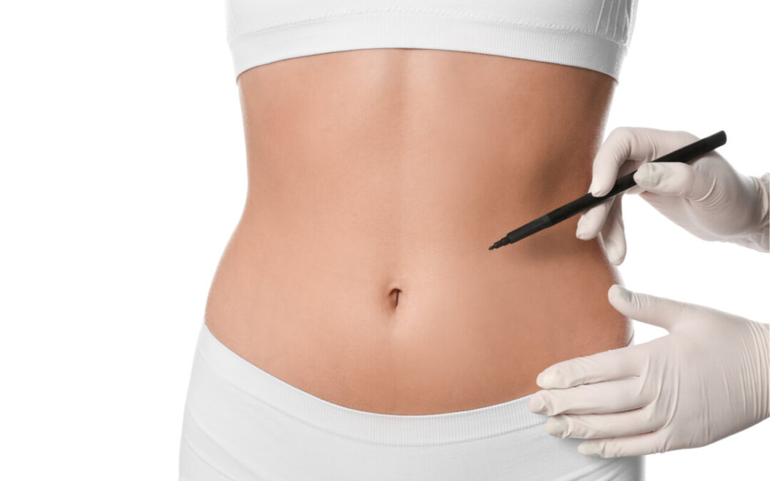 What Is A Fleur De Lis Tummy Tuck?